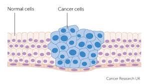 कैंसर की बीमारी के इलाज से बेहतर है कि हम समय रहते उससे बचाव सुनिश्चित करें।